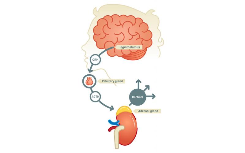 ¿Cuáles son los tipos de crisis adrenal aguda?