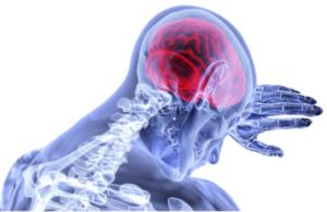 Alzheimer, Proceso de diagnóstico del Alzheimer