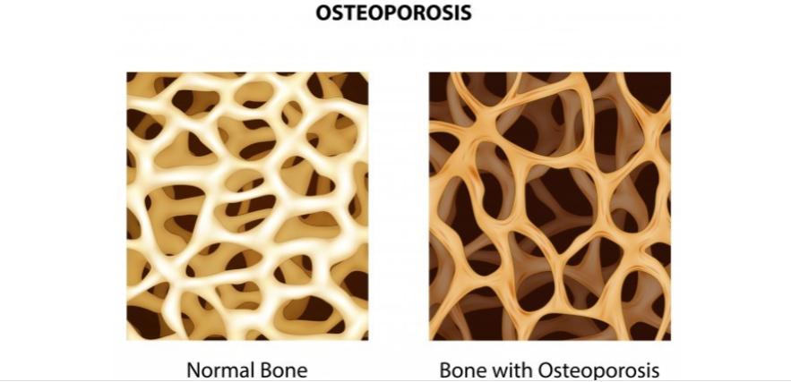 Factores de riesgo que influyen en la osteoporosis